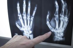 MRI Measures of Synovitis in RA, a Valuable Endpoint