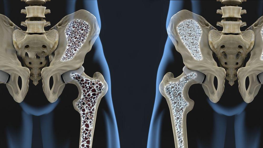 Osteoporosis (©JavierRegueiro/Shutterstock.com)