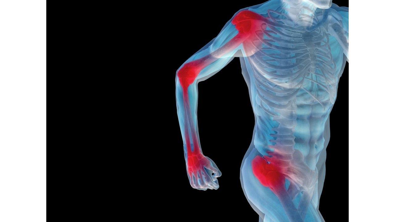 EULAR/ACR Treatment Guidelines for Polymyalgia Rheumatica