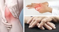 The 2021 Treatment Guidelines for Rheumatoid Arthritis