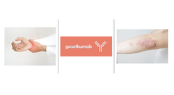 Guselkumab Sustained Long-Term Efficacy in Patients with Active Psoriatic Arthritis