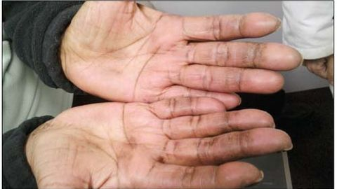 Muscle Weakness and Hand Discoloration in a 60-Year-Old Woman