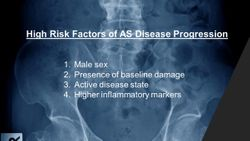 4 Factors Associated With Ankylosing Spondylitis Progression