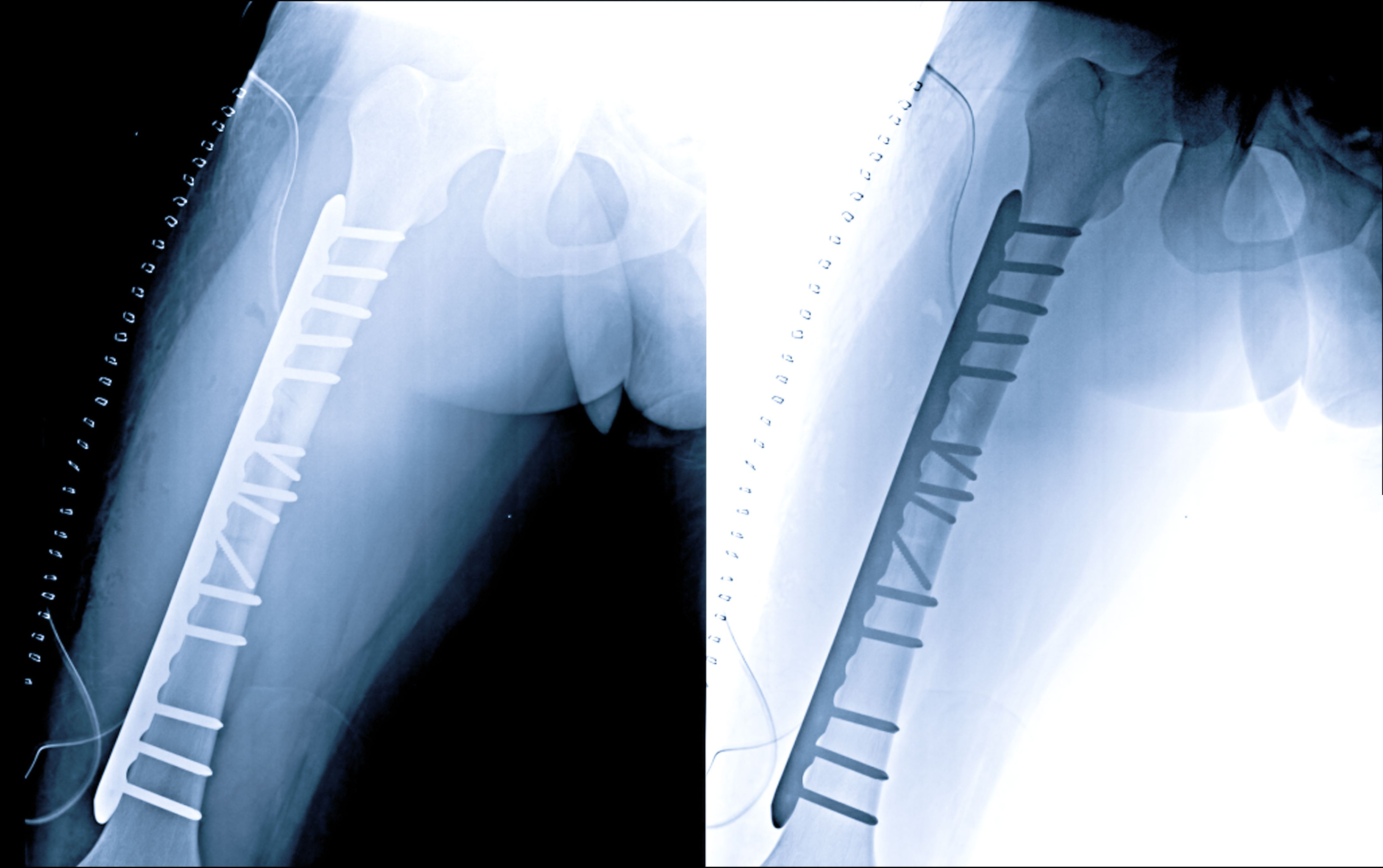 Atypical Bone Fracture Risk Rises With Bisphosphonates: Atypical femur fracture risks are very low, but the risk rises with long-term use of bisphosphonate, study says.