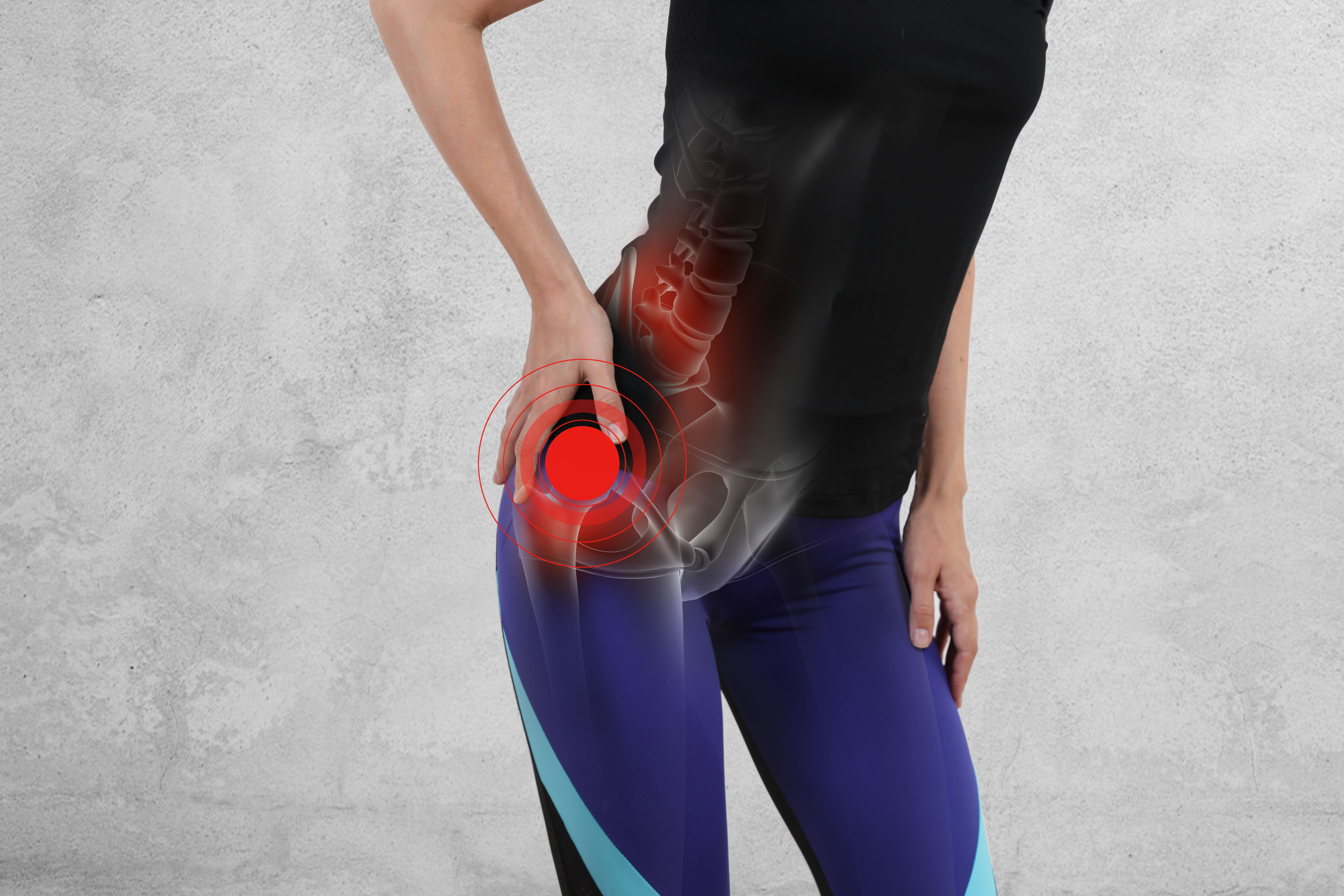 Motion Tests Essential for an Osteoarthritis Diagnosis: