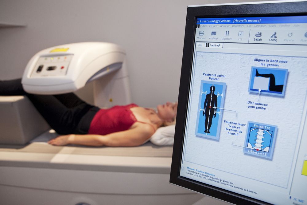 Bone Densitometry Examination (©ImagePointFrShutterstock.com)