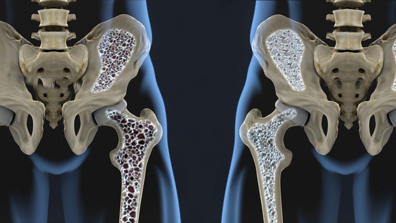 "In ""Biologics Help Maintain Bone Density in RA"