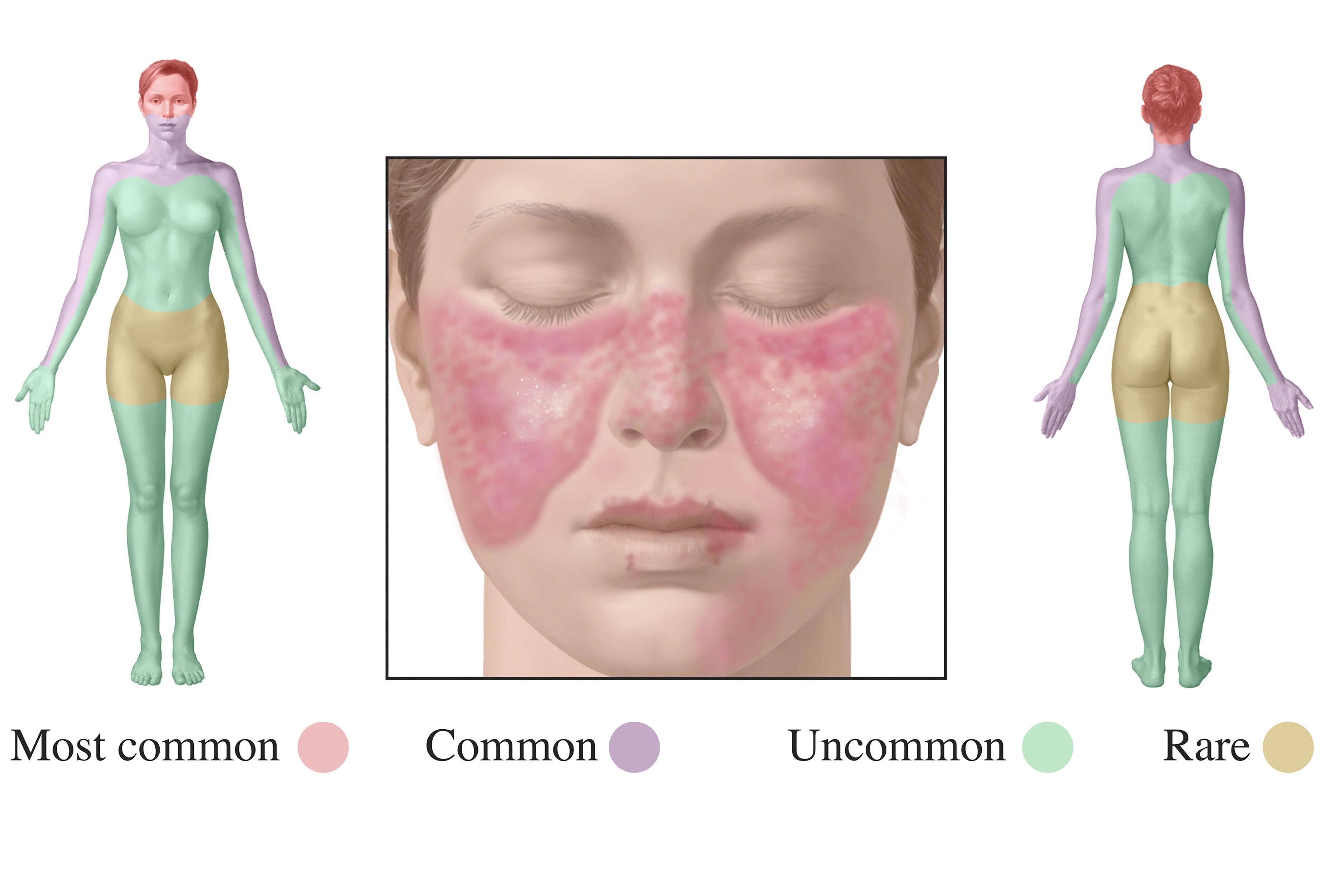 10 CHALLENGES IN TREATING LUPUS: