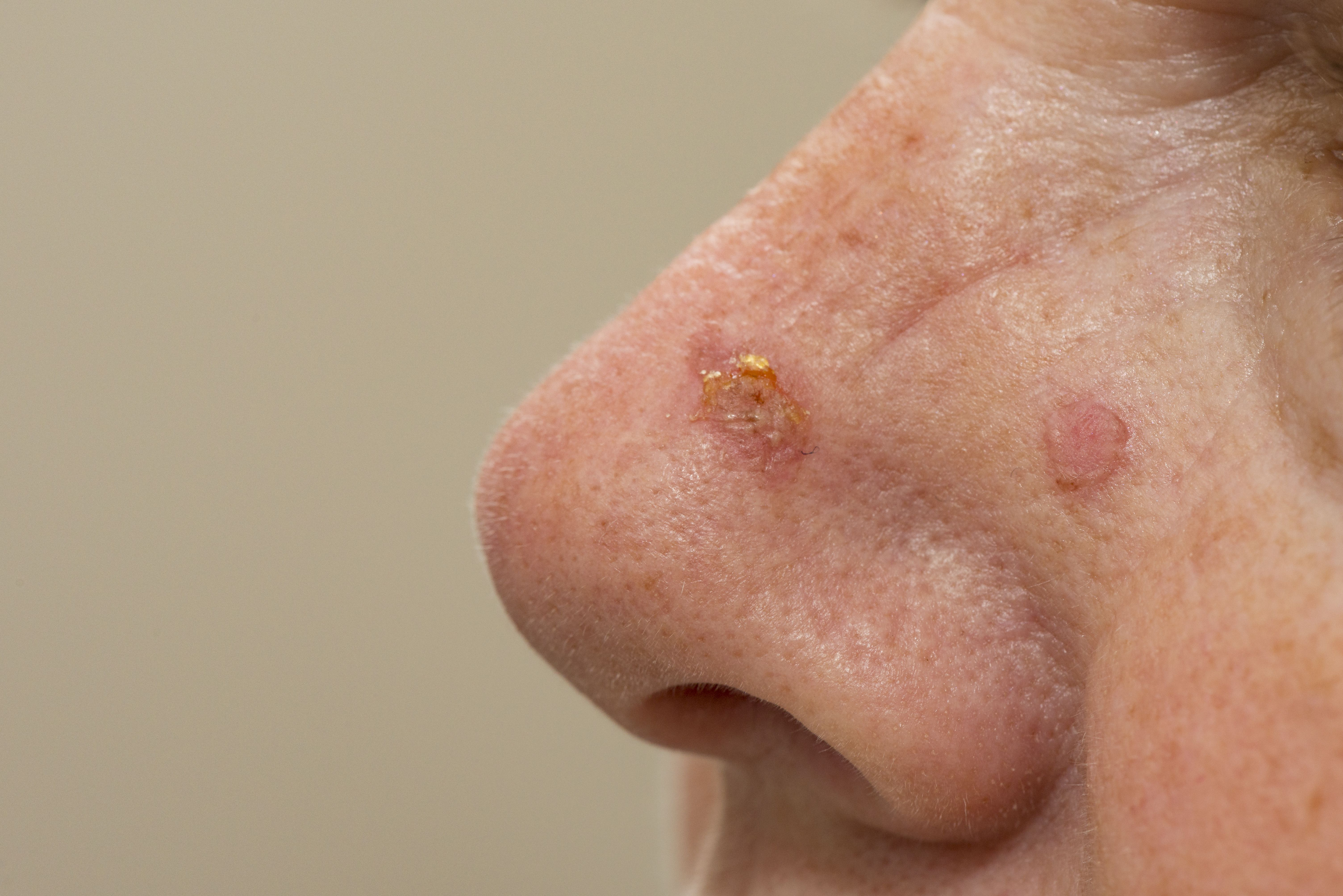 Psoriasis Cancer Prevalence Is 4 7 New Research Shows Rheumatology Network