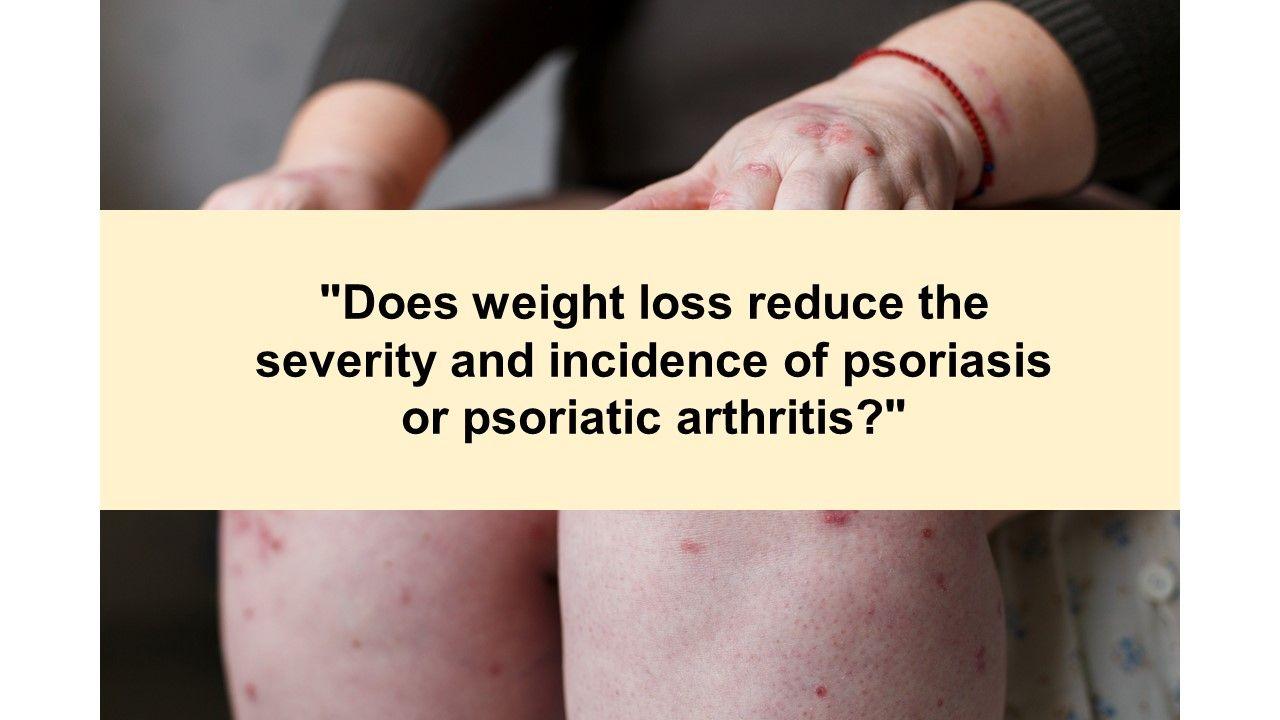 Psoriatic Arthritis Health Quiz: Is it axial PsA or AS?