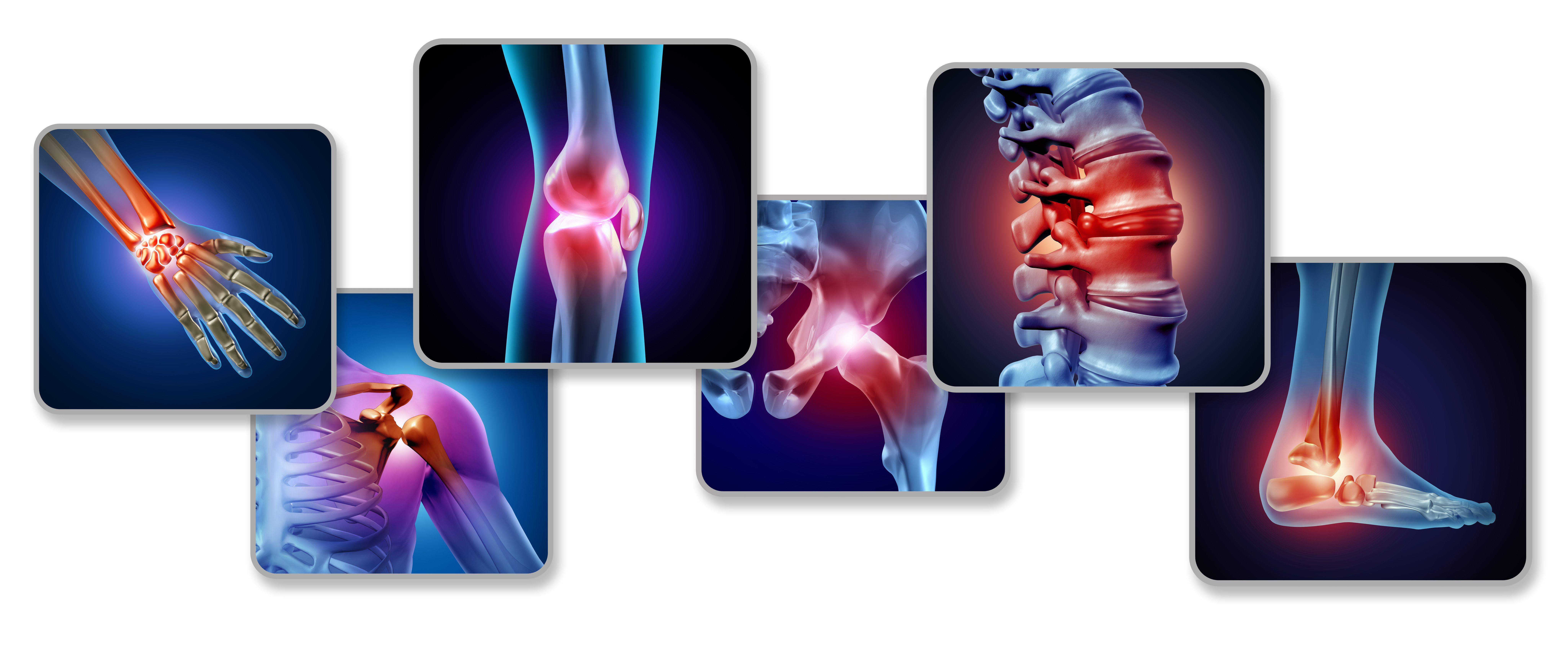 Ixekizumab Bests Adalimumab at 24 Weeks in Psoriatic Arthritic Skin, Joint Sympt