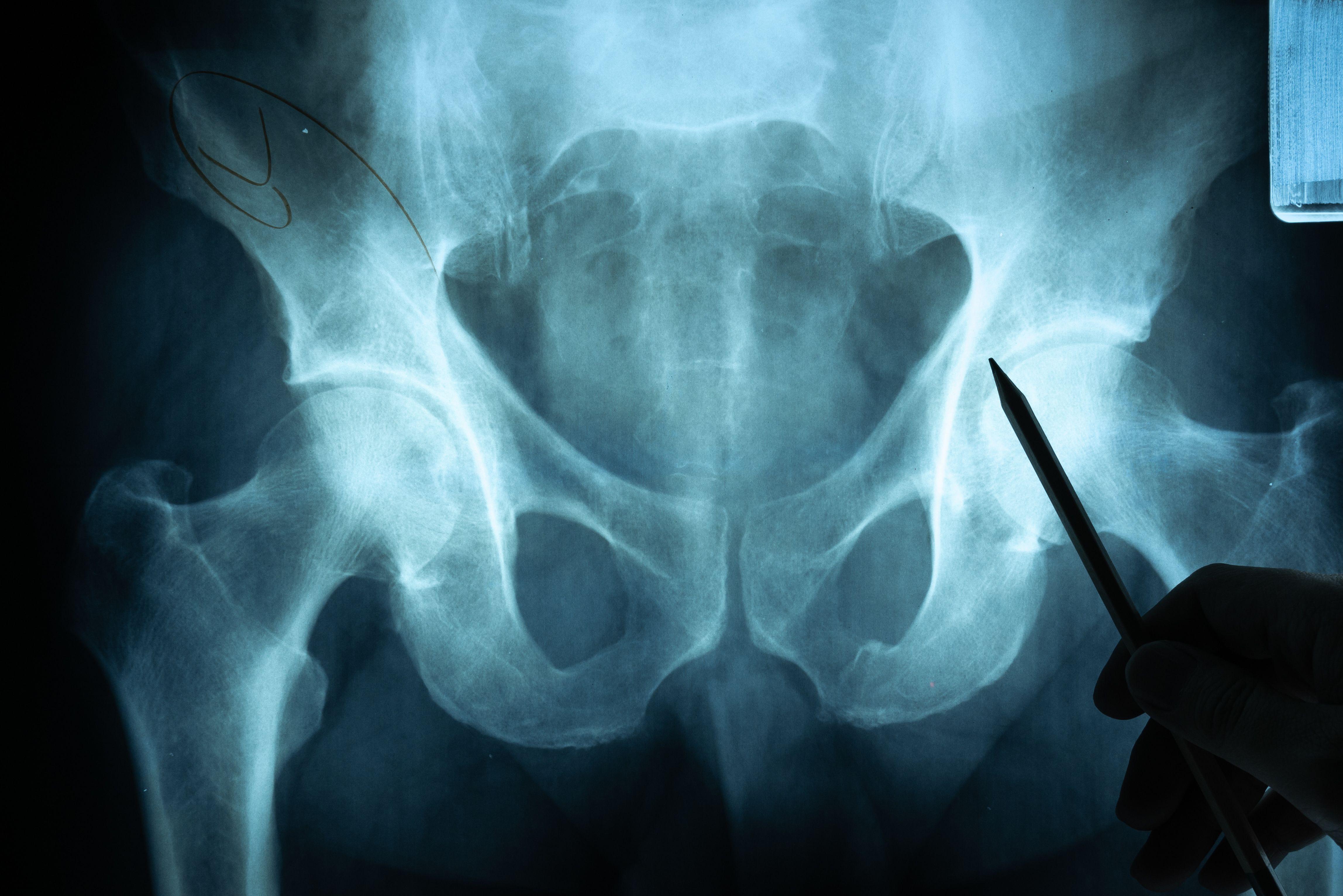 A Review of Reactive Arthritis.
