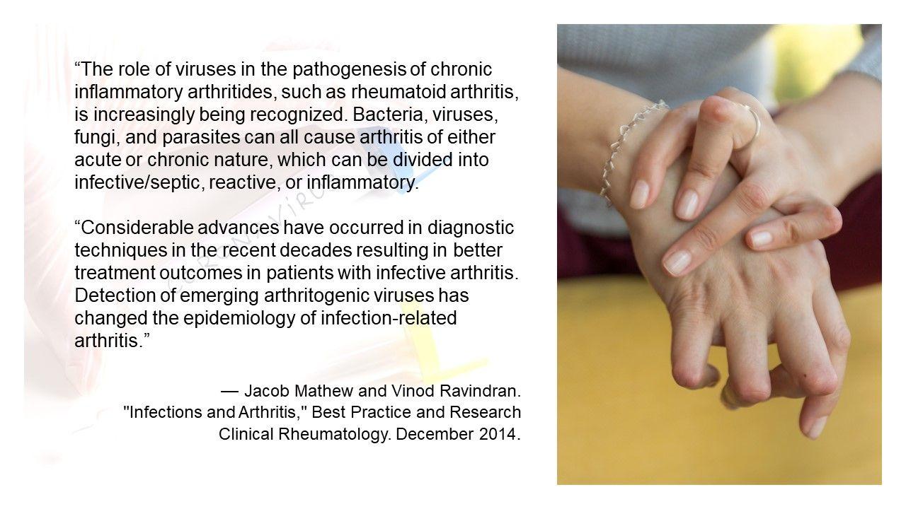 News Roundup:  Coronavirus and Autoimmune Disease