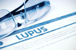 Healthy Lifestyle Choices Significantly Reduce Systemic Lupus Erythematosus Risk