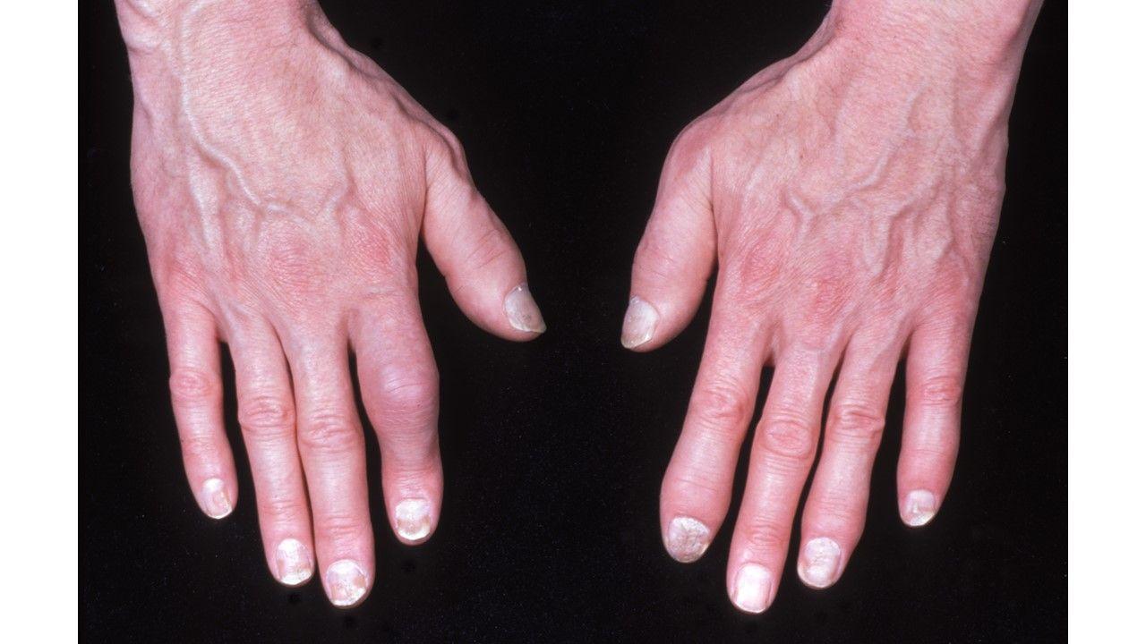Psoriatic Arthrits Quiz:  Phenotypes