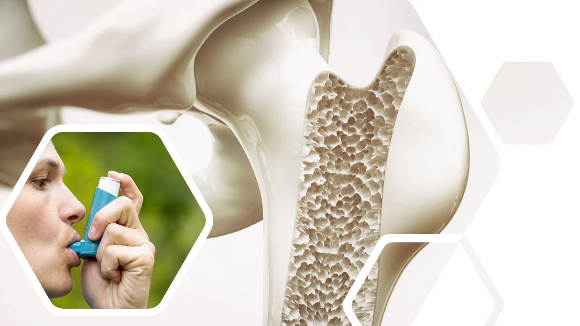 Asthma Inhalers May Be Linked to Increased Risk of Osteoporosis
