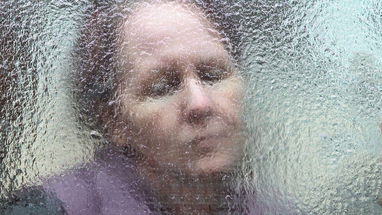 Once arthritic flares subside, so do feelings of fatigue in rheumatoid arthritis