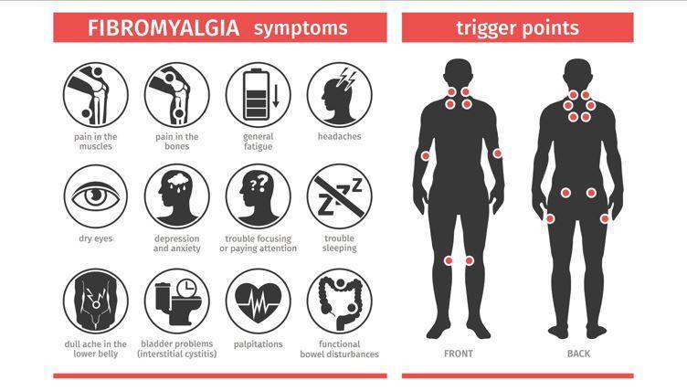 Intramuscular Pressure Linked to Pain in Fibromyalgia