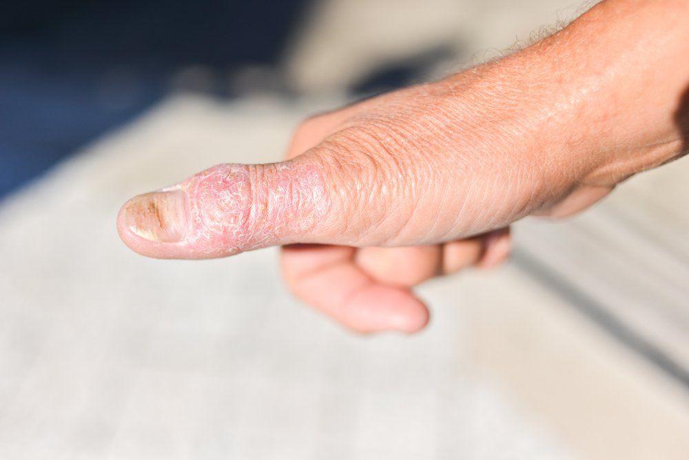 Nail psoriasis kezelésére