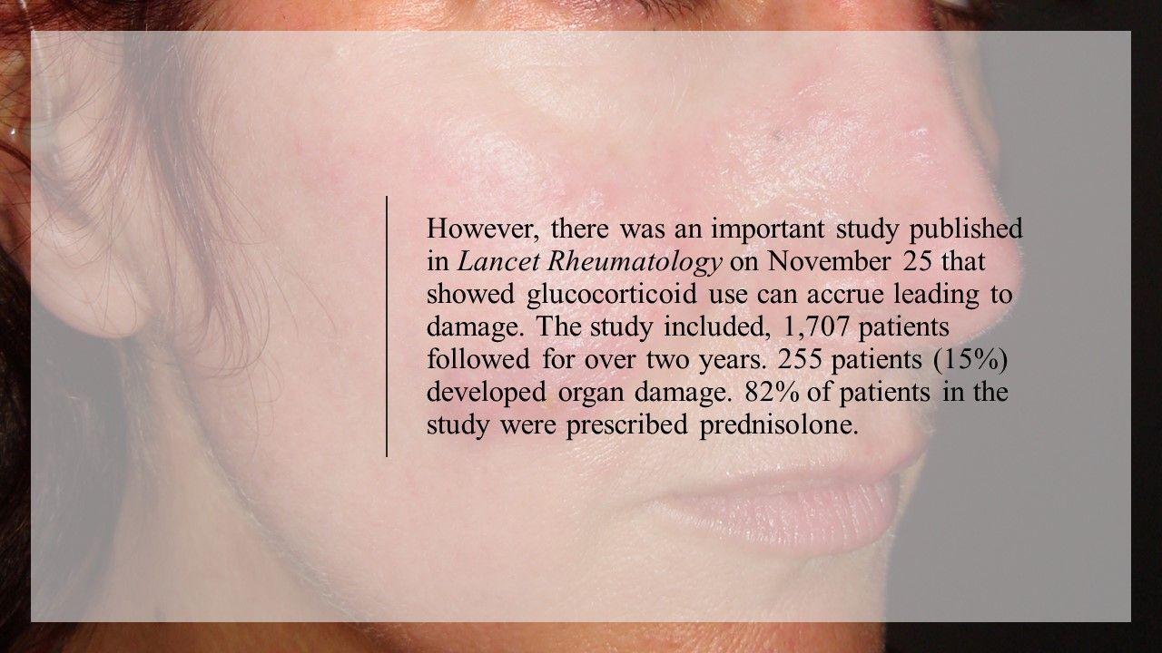 2019's Top Treatment Advances in Lupus