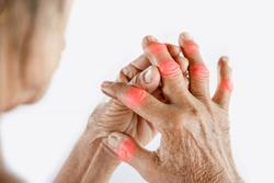 Steroid Injection Effectively Treats Psoriatic Hand Dactylitis