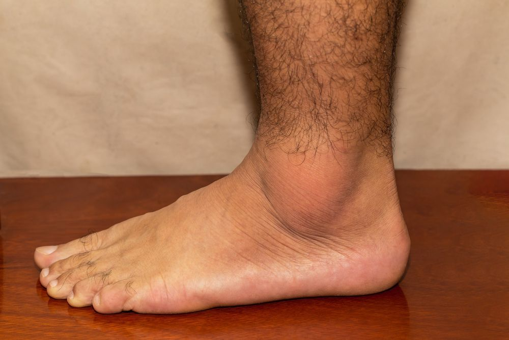 Early-Onset Gout May be Associated with Increased Cardiovascular Disease.