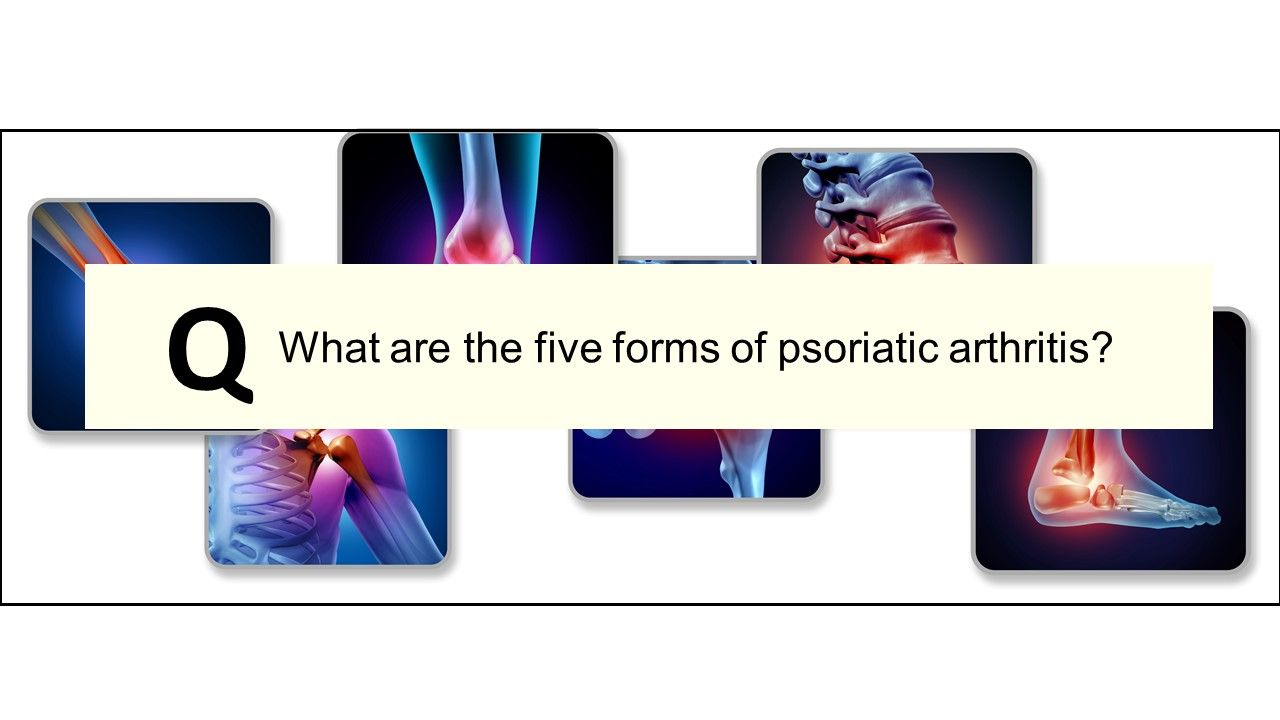 Psoriatic Arthritis Quiz:  What are the five forms of PsA?