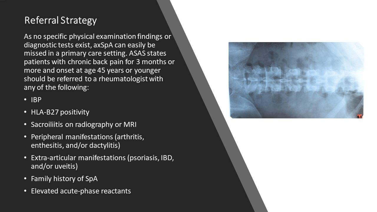 Recognizing Axial Spondyloarthritis in Primary Care