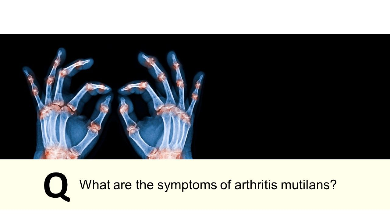 What are the symptoms of arthritis mutilans?