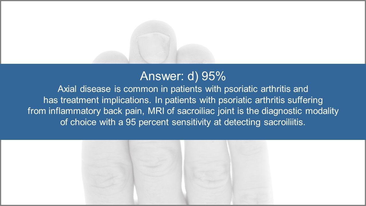 Psoriatic Arthrits Quiz:  Treatment Options