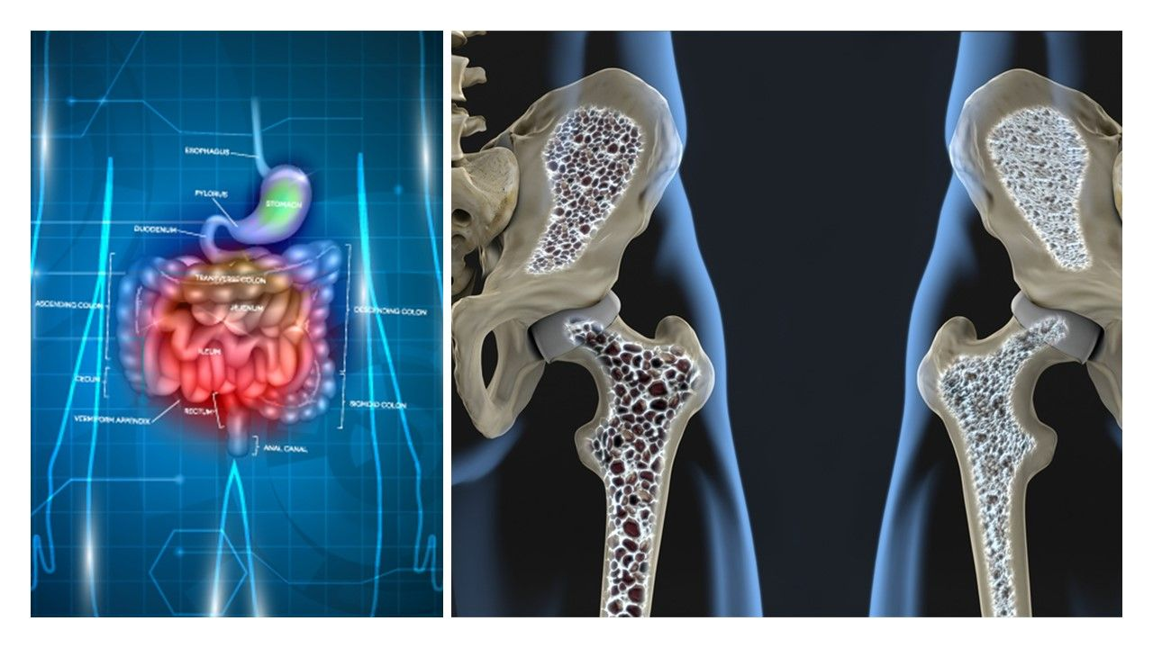 Probiotics Protect Against Lumbar Spine Bone Loss in Early Menopause: