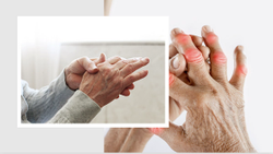 Baricitinib Lowers Structural Joint Damage in Patients With Rheumatoid Arthritis