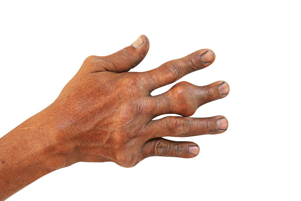 (Hand and fingers with gout. ©seneesriyota/Shutterstock.com)