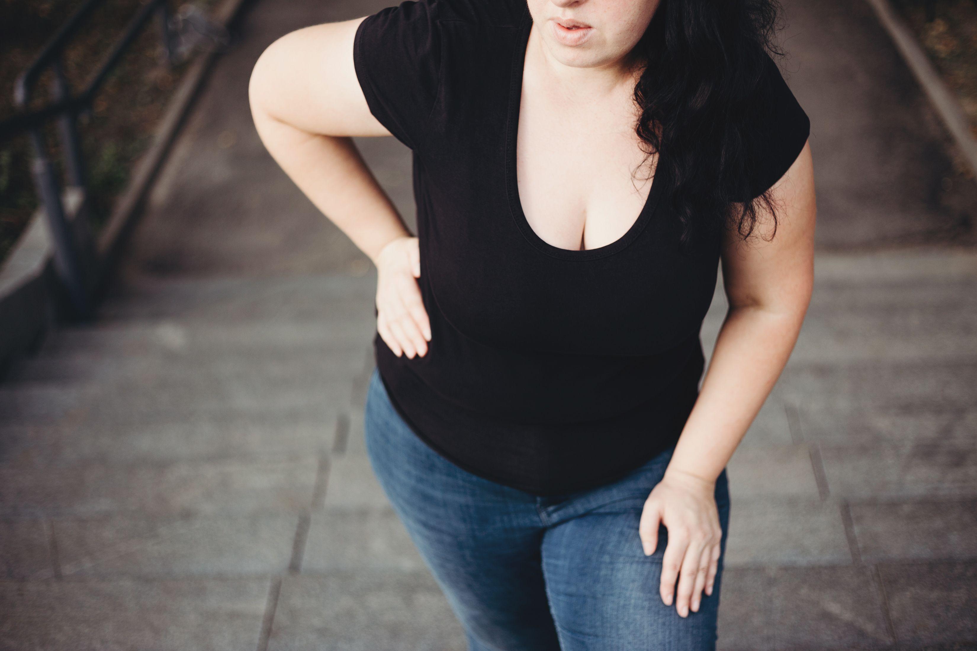 HIGH BMI ASSOCIATED WITH PSORIATIC ARTHRITIS AND RHEUMATOID ARTHRITIS: