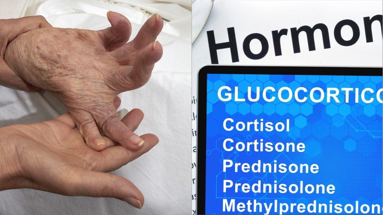 The Art of Discontinuing Glucocorticoids in Rheumatoid Arthritis: