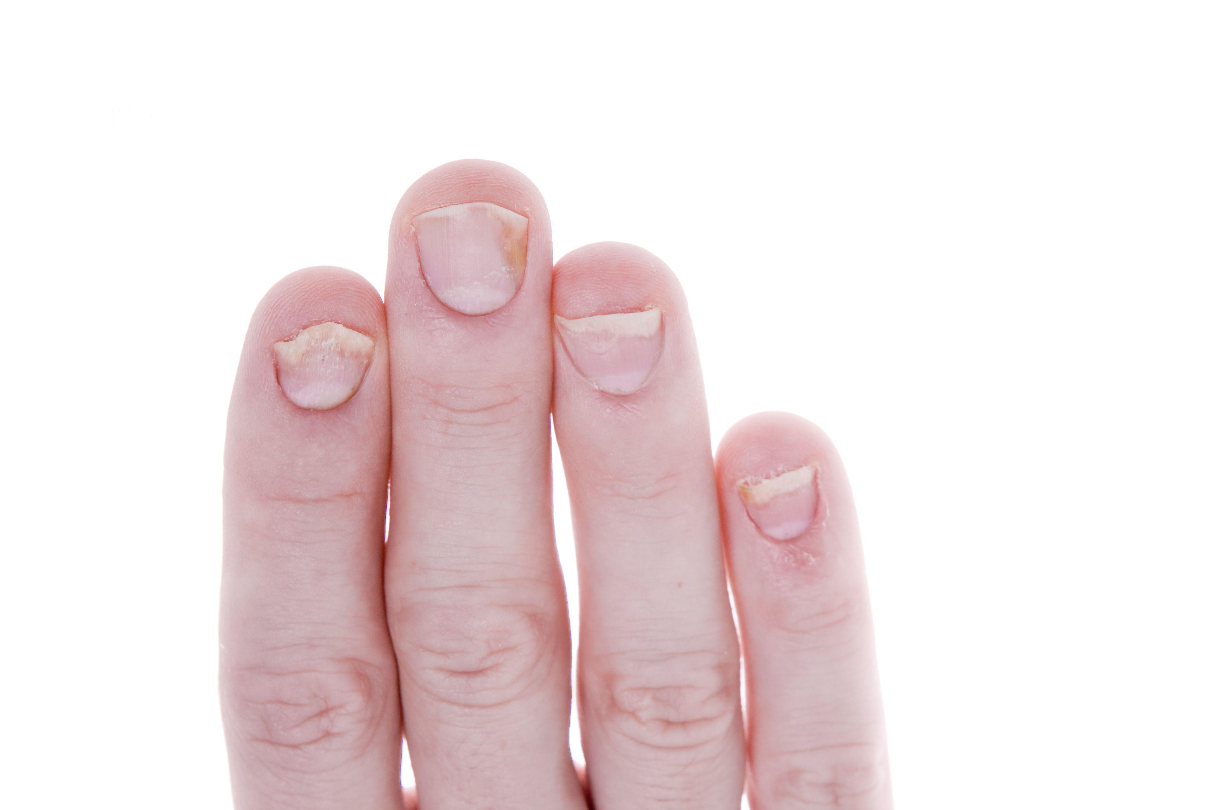 PSA Quiz:  Joint Symptoms and New Treatments
