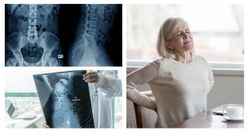 Women With Axial Spondyloarthritis Have Higher Disease Burden Than Men