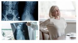Women With Axial Spondyloarthritis Have Higher Disease Burden Than Men