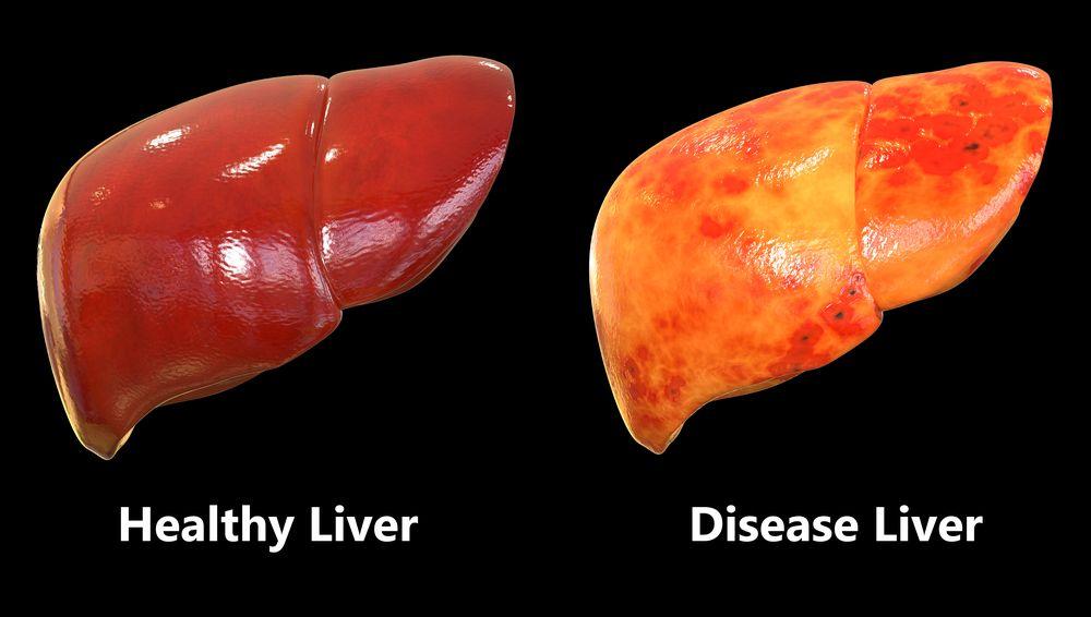 Fatty livery disease (©MagicMine/Shutterstock.com)