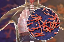 Secukinumab Not Associated With Tuberculosis
