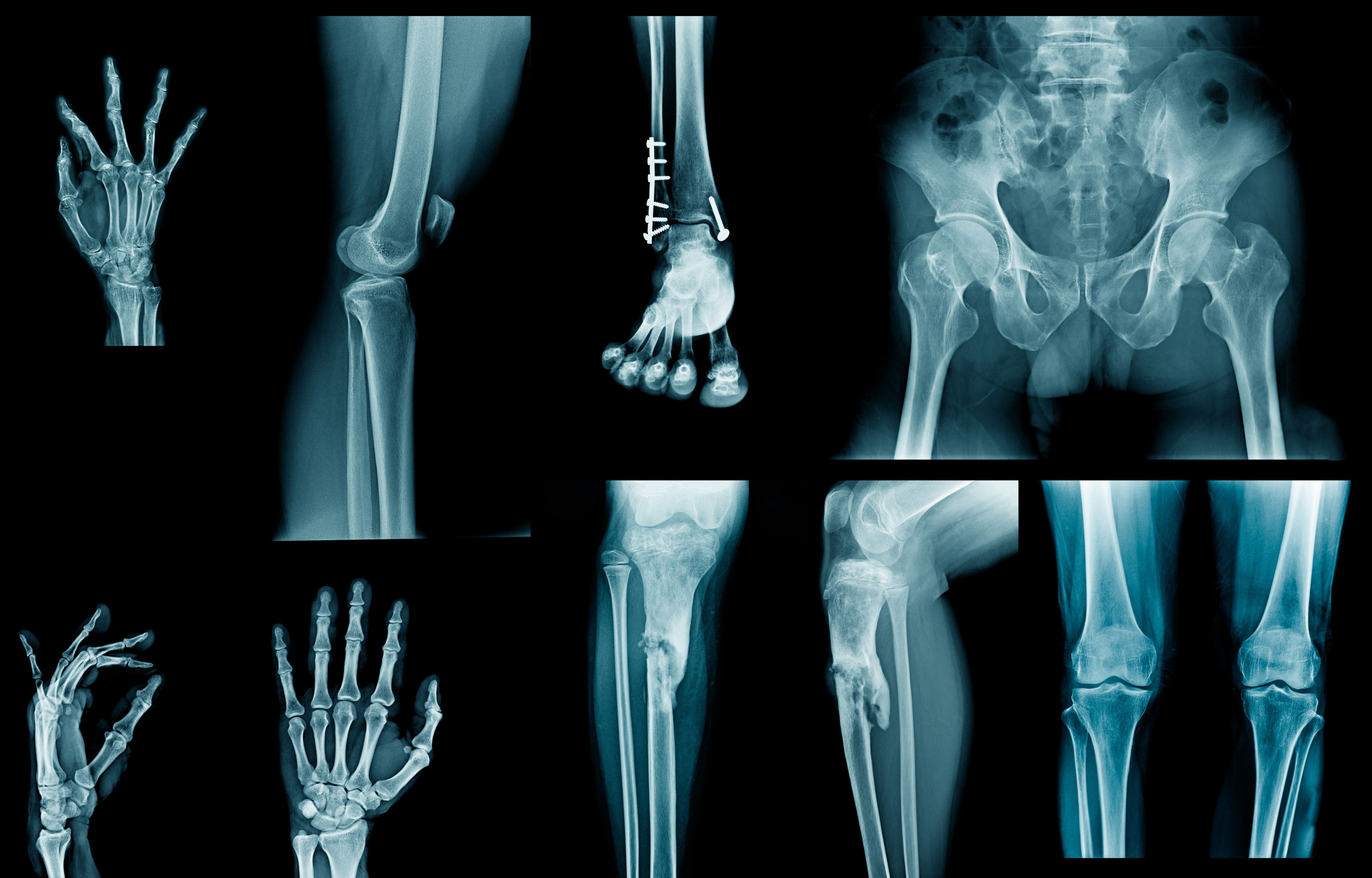 Case Study: 40-year-old man with joint pain.