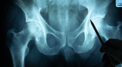 Total Joint Surgery May Lower Fall Risk