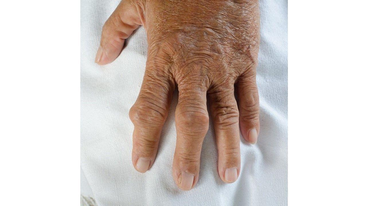 Black Box Blues for Gout Treatment Febuxostat.
