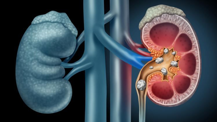 Dapagliflozin Earns Breakthrough Therapy Designation for Chronic Kidney  Disease