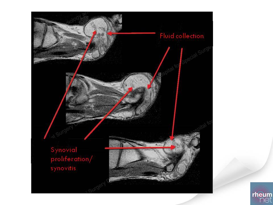 intermetatarsal bursitis