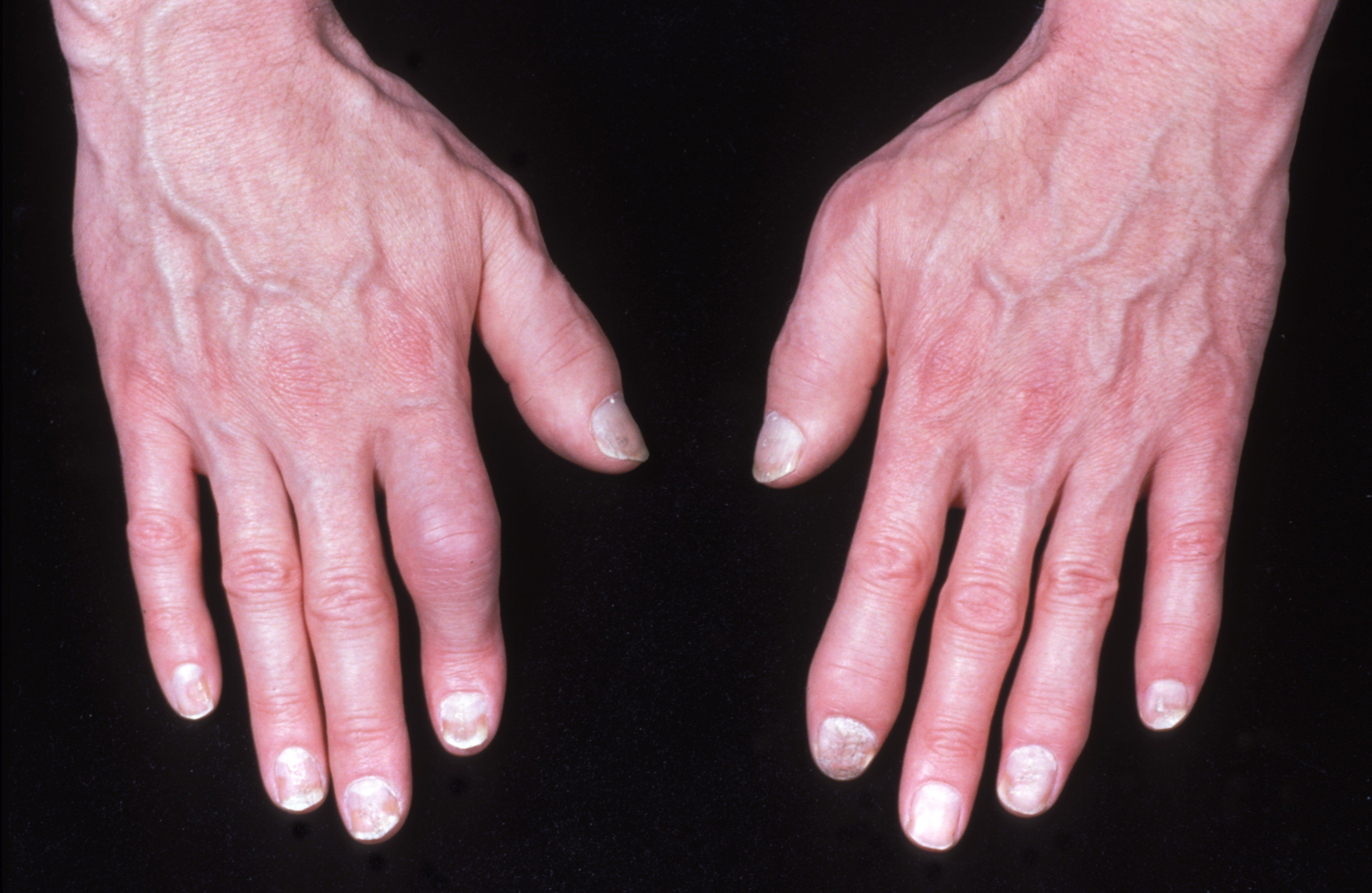 a térdízület bursitisz tünetei és kezelése elektroforézis a csípőízület fájdalmáért