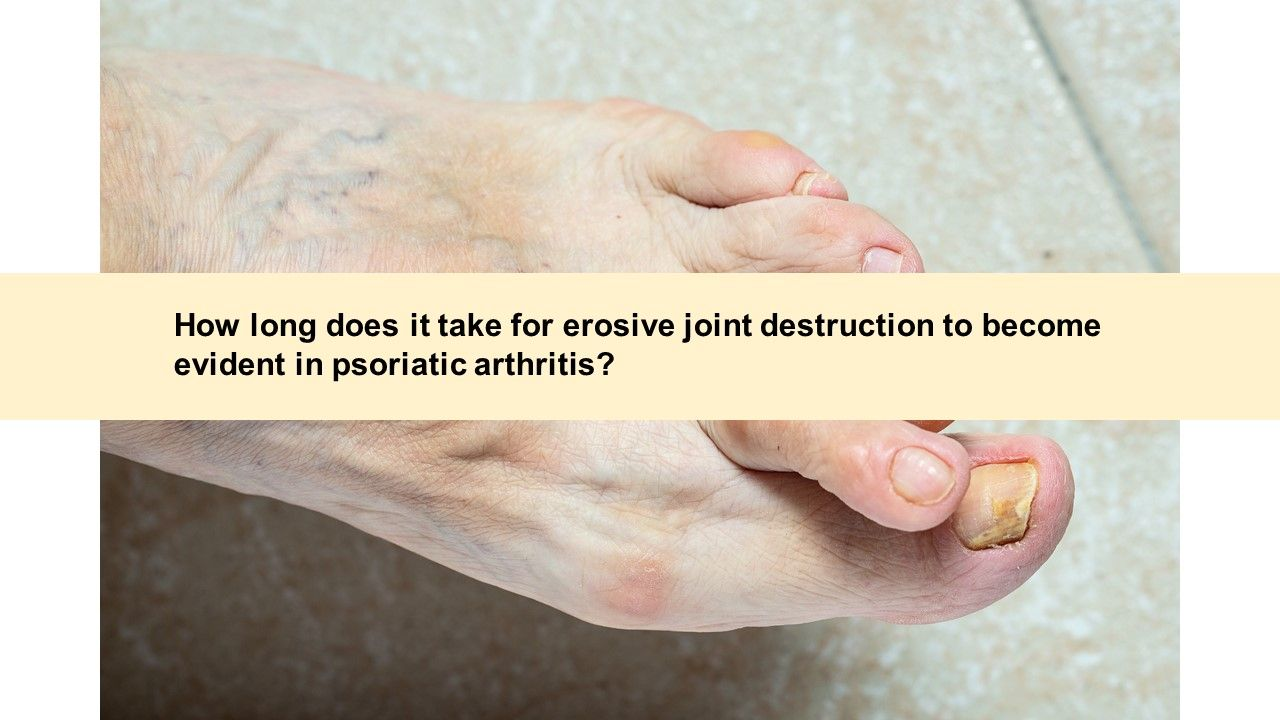Psoriatic Arthritis Quiz: Monotherapy, Complimentary Medicine and Joint Destruct