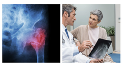 Bisphosphonates Show No Significant Benefit for Hip Fracture Risk after Five Years