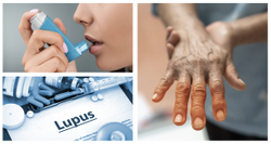 Asthma and COPD Linked to Worse Outcomes for Patients With Systemic Lupus Erythematosus