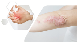 Guselkumab Effective in Treating Enthesitis in Psoriatic Arthritis